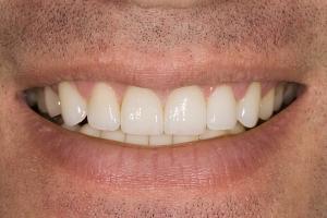 Jordie Gummy Smile S Post 88
