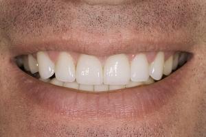 Jordie Veneers & Gum Lift S Post 88