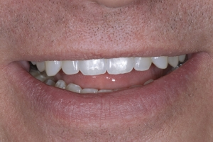 JR Invisalign S Post 3694