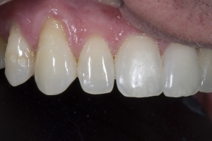 JR Gum Graft CTG B4