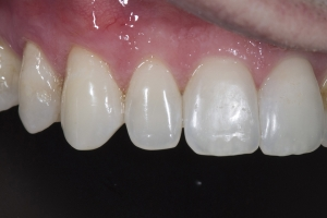 JR Gum Graft CTG Post 6094