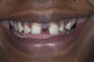 Karen S Diastema  Before 7881