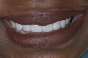 Karen Laser Gum Lift S Post _4KL8959