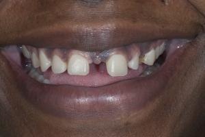 Karen Veneers & Orthodontics S B3 7881