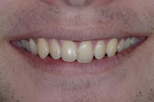 Karl Clear Aligners S  Before 5018