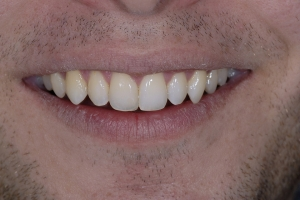 Karl Clear Aligners S After 1895