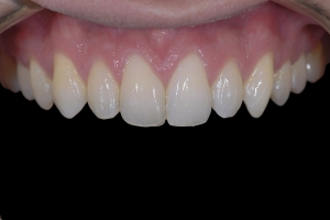 Karl Clear Aligners X1 After 1903