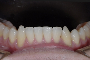 Karl Clear Aligners X1L After 1904
