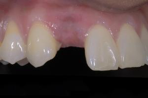 Karla Implant Crown 2 7037 copy