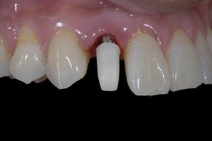 Karla Implant Crown 5 9325