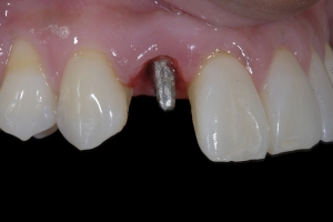 Karla Implant Crown 3 9322