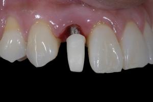 Karla Implant Crown 4 9324