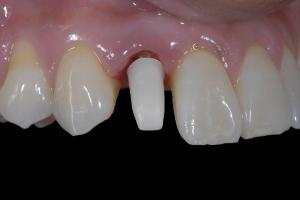 Karla Implant Crown 6 9326