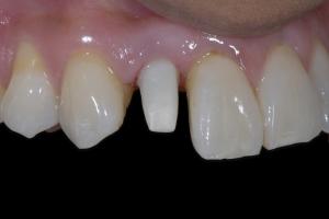 Karla Implant Crown 7 9609