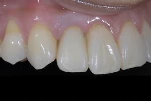 Karla Implant Crown 8 9693