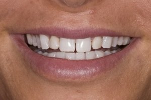 Kate Gum Graft S B4 0035