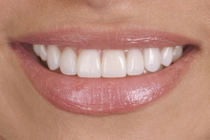 Kati Veneers S Post 2 (1)