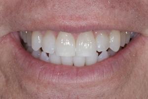 Kelly Teeth Whitening S Post 6101