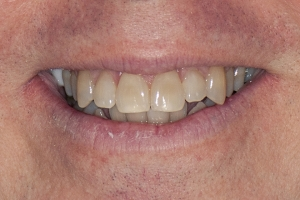 Kelly Teeth Whitening S B4 0184