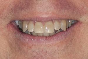 Kelly Laser Teeth Whitening S B4 0184