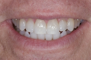 Kelly Laser Teeth Whitening S Post 6101