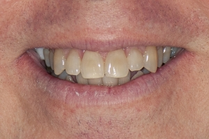 Kelly Laser Teeth Whitening S B4 0184