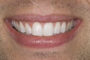Ken Teeth Whitening S Post 9338