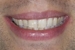 Ken Teeth Whitening S B4 0094