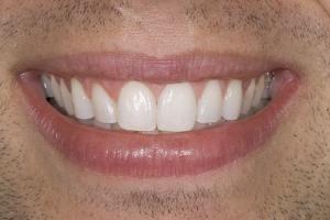 Ken Teeth Whitening S Post 9338