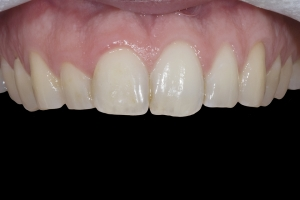 Ken Teeth Whitening X121 B4 00962