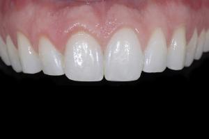 Ken Teeth Whitening X121 Post 9341