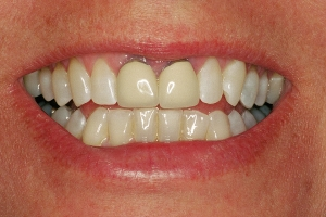 Kerry S Grey Tooth Crown  Before J&M002