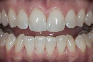 Kim Teeth Whitening R B4_DSC0008
