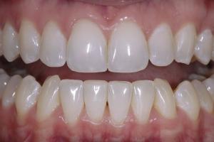 Kim Teeth Whitening R Post_DSC4378 b
