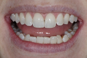 Kim Invisalign S  Before 0012