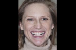 Kim-Teeth-Whitening-F-Before-0013