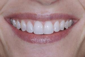 Kim Laser Teeth Whitening S After 4372