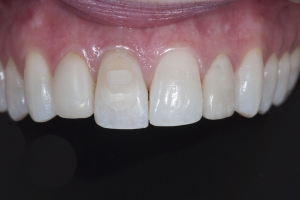 Kirsten Braces Extrusion X Extrusion Post 6726