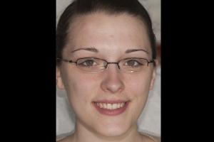Kristen Teeth Whitening F B4 0016
