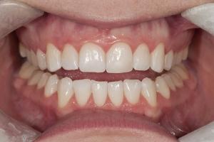 Kristen Teeth Whitening R Post 0064