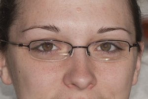 Kristen Teeth Whitening F B4 0016 copy