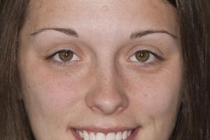 Kristen Teeth Whitening F Post 0075 copy