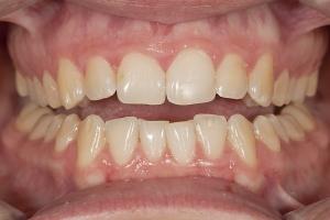 Kristen Teeth Whitening R B4 0013