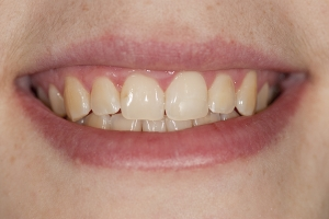 Kristen Teeth Whitening S b4 0010