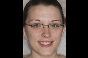 Kristen-Teeth-Whitening-F-B4-0016