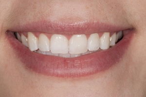 Kristen Laser Teeth Whitening S Post 0063