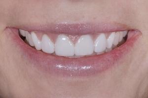 Kristin Veneers & Gum Lift S Post 8228