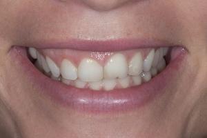 Kristin Gummy Smile S B4 7423