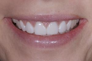 Kristin Gummy Smile S Post 8228