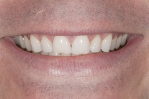 Kurt S Diastema  Before 0001